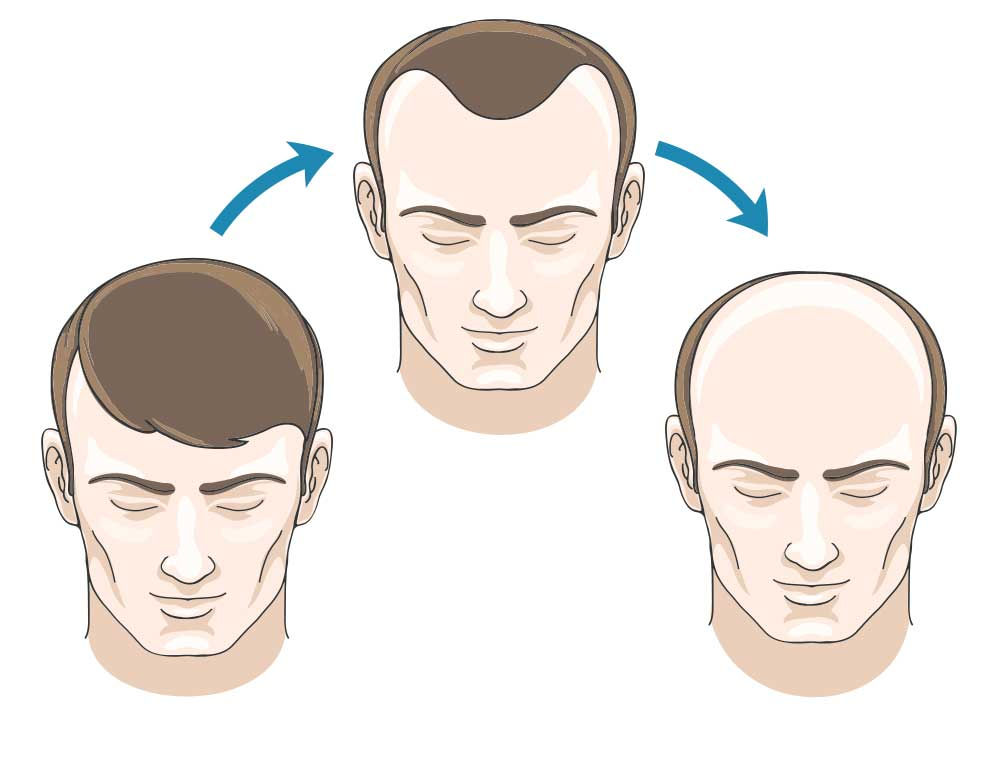 man losing hair over time