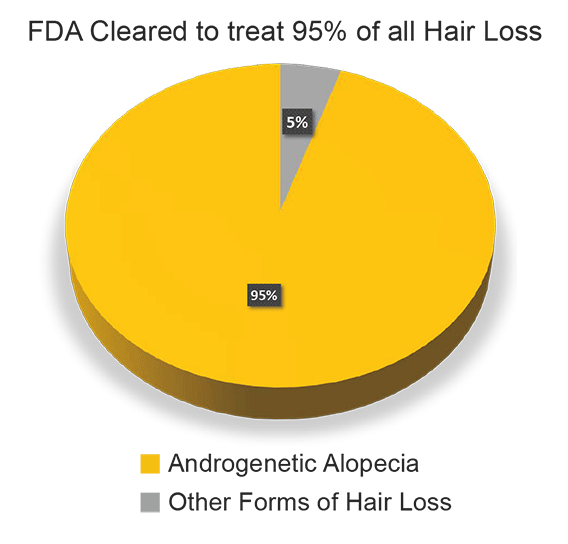 95 percent of all hair loss is androgenetic alopecia (male and female pattern hair loss)