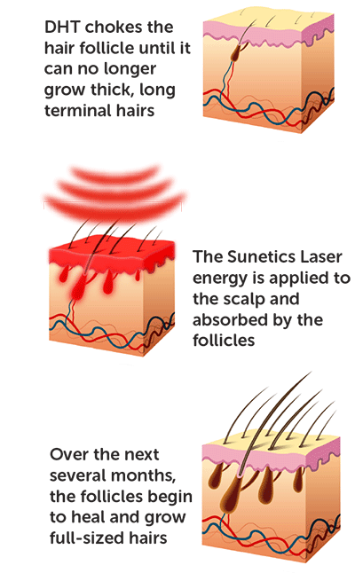 sunetics laser heals the follicle, increasing cellular energy through healing light