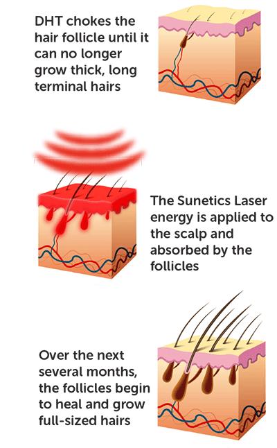 sunetics laser heals the follicle, increasing cellular energy through healing light