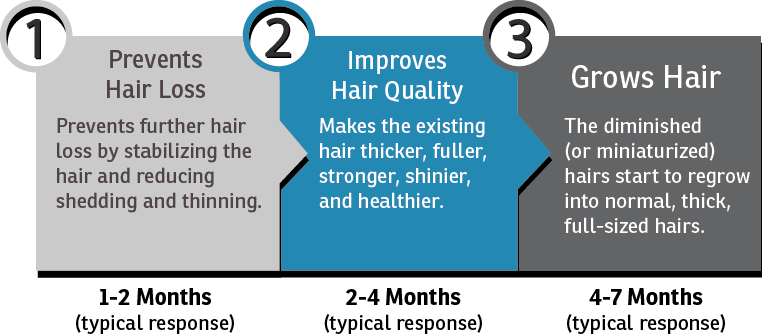 the three stages of results. prevents hair loss, improves hair quality, grows hair.